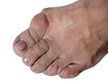 close-up of woman foot feet with bunion on hallux