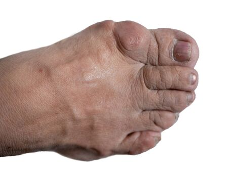 human foot with bunion big bone near hallux big finger on white background. isolated cutout image Imagens