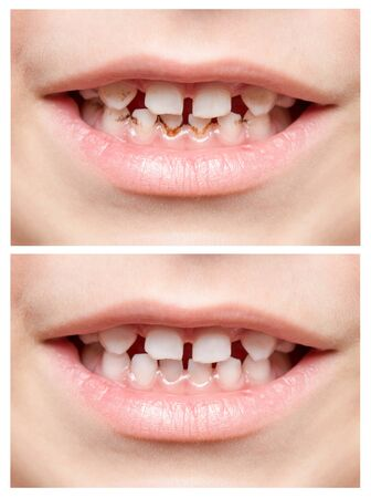 Teeth. Childrens mouth. Photo closeup. Collage