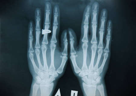x ray image: A x-ray of both human hand picture  Stock Photo