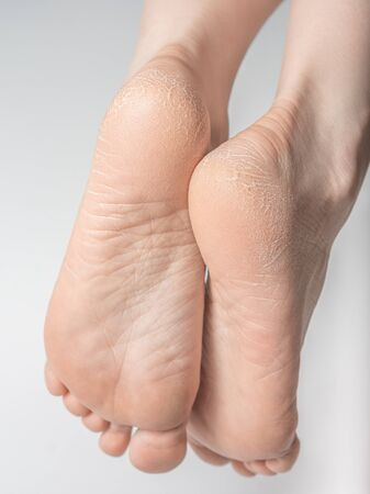 Dry and cracked soles of feet on white background. Foot treatment