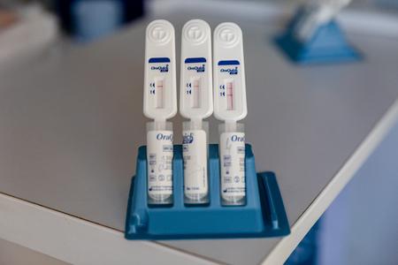 MINSK, BELARUS - 1 JUNE, 2019: drug addict is tested for HIV