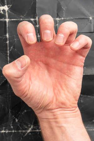 Man clenching fist on black grunge background close up Фото со стока