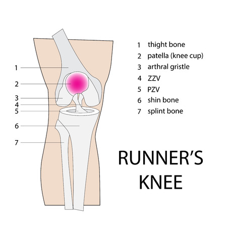 sprain: runners knee. vector illustration of a knee injury with description