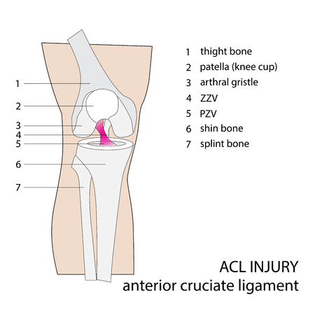 sprain: ACL. anterior cruciate ligament. vector format illustration.