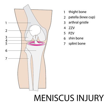 meniscus: vector format illustration of a knee meniscus injury