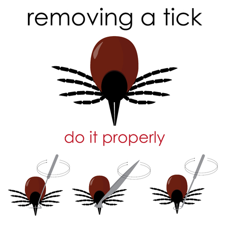 infographic vector illustration on how to properly remove a tick, and avoid lyme disease.