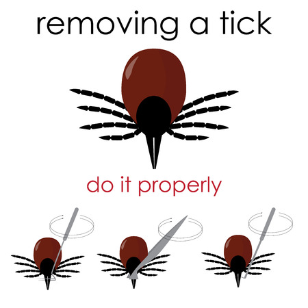lyme: infographic vector illustration on how to properly remove a tick, and avoid lyme disease.