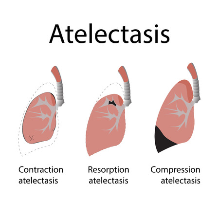 obstructive: Atelectasis. vector illustration of a lung disease