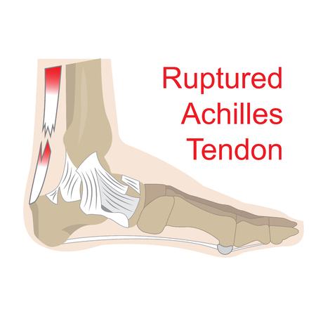 dolore ai piedi: illustrazione vettoriale di Achille rottura del tendine. immagine di anatomia del piede con tutti i tendini e le ossa.