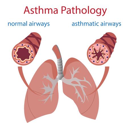 asthma: ilustración vectorial de los pulmones y las vías respiratorias. Normal y asmática.