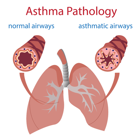 asthma: vector illustration of lungs and airways. Normal and asthmatic.