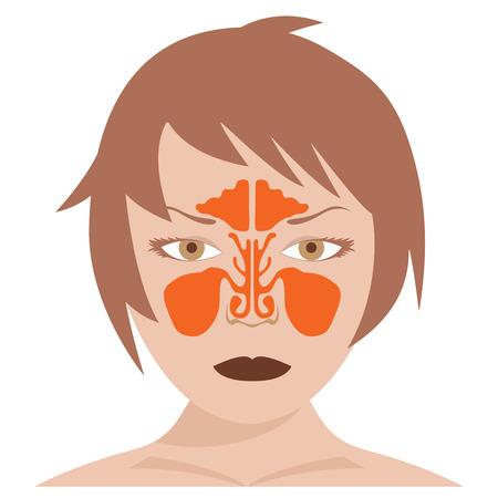 정면: vector image of nasal and frontal sinus. woman model on a white background.