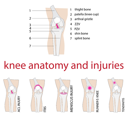 vector illustration of knee anatomy with description and injuries  イラスト・ベクター素材