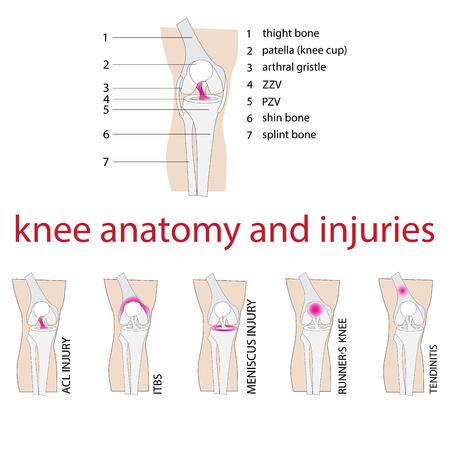 ilustración vectorial de la anatomía de la rodilla con la descripción y las lesiones