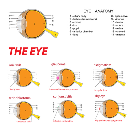 vector illustration of a human eye anatomy and diseases