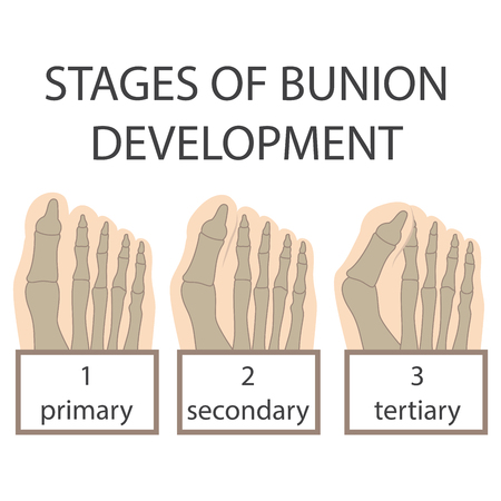 bunion: human foot. vector illustration of a Bunion development