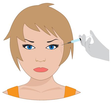 procedure: Vector collagen treatment. plastic surgery of eyes wrinkles