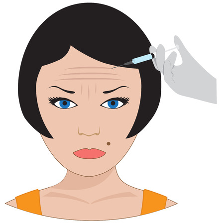 collagen: Vector collagen treatment. plastic surgery of forehead wrinkles