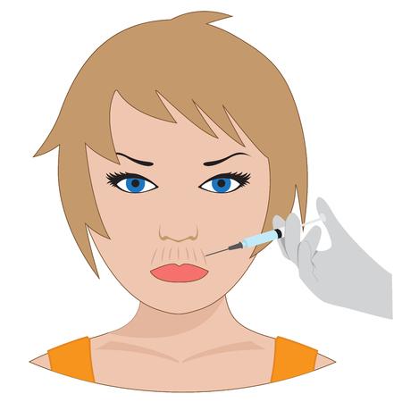 arrugas: Tratamiento con col�geno vectorial. la cirug�a pl�stica de labios arrugas Vectores