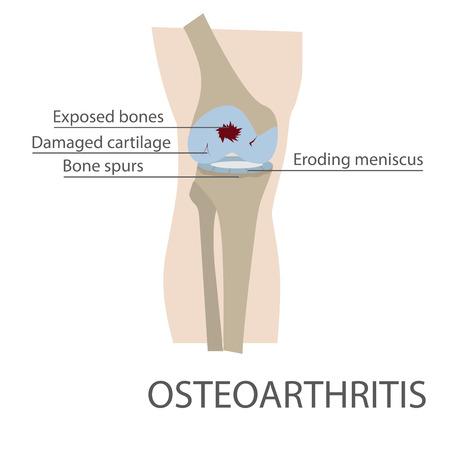 osteoarthritis: osteoartritis de rodilla humana enfermedad de las articulaciones. formato vectorial ilustraci�n