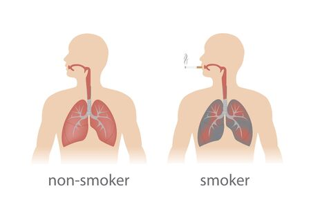 smoker and non smoker lungs comparison.
