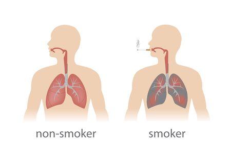 smoker: smoker and non smoker lungs comparison. Illustration
