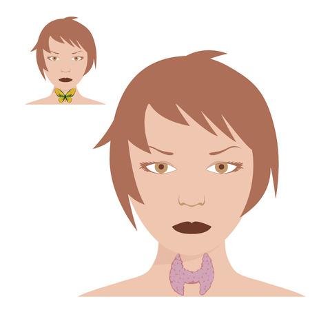 illustration of thyroid disease with Hashimotos Иллюстрация