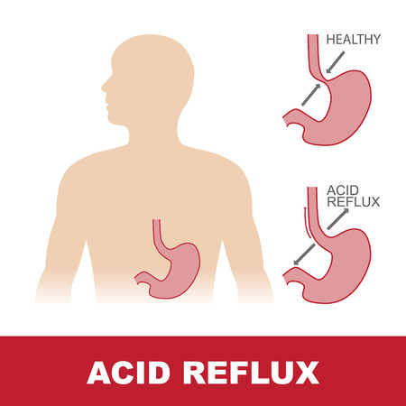 vector illustration of comparison of healty and stomach with acid reflux