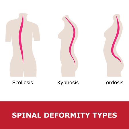 scoliosis, lordosis and kyphosis. Illustration of a spinal deformity types.