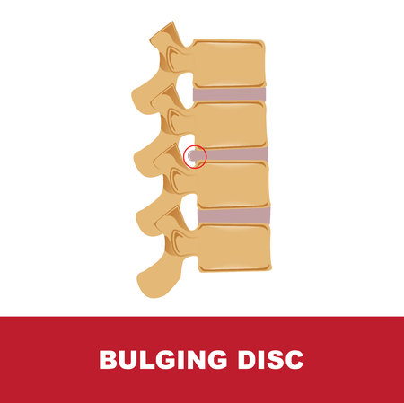 Human disc degeneration. Bulging disc vector illustration Illustration