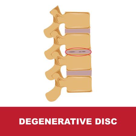 Human disc degeneration. Degenerative disc vector illustration