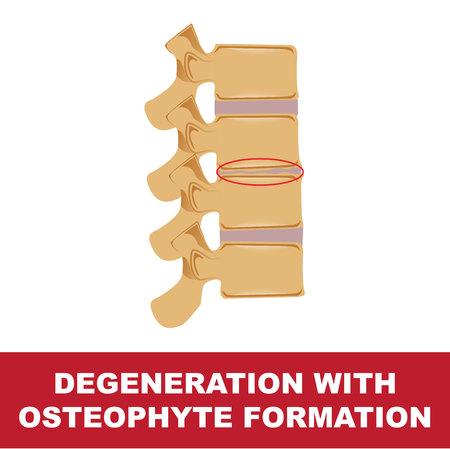 Human disc degeneration. Degeneration with osteophyte formation