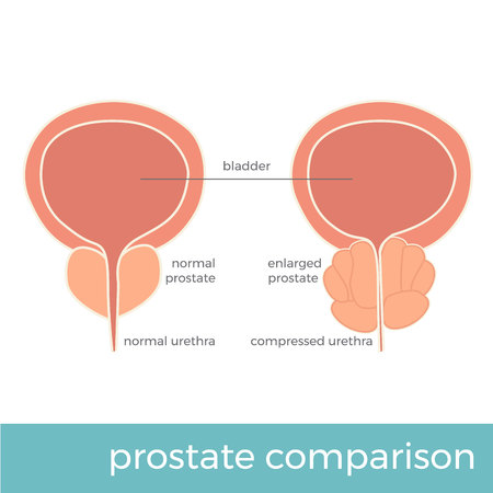 vector illustration of normal and enlarged prostate comparison.