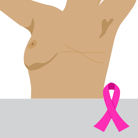 vector illustration depicting a woman after mastectomy with a visible postoperative scar. a winner in the fight against breast cancer
