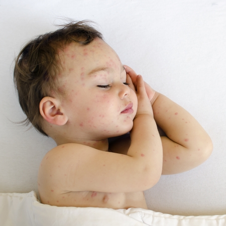 Potrait of a sleeping child with red spots on his skin of chicken pox.  Stock Photo