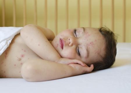 wysypka: Potrait dziecko Å›pi z czerwonymi plamami na skórze z ospa wietrzna. Zdjęcie Seryjne