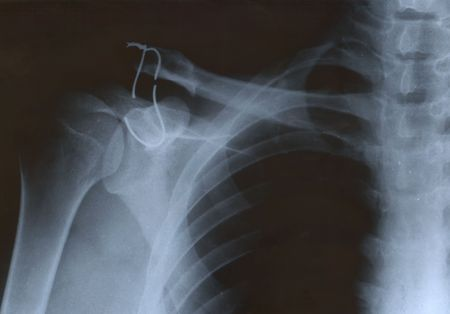 x-ray of shoulder bones, broken wire was applied to mend a broken collarbone