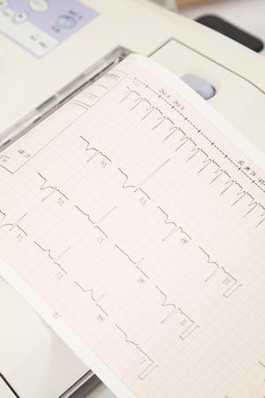 electrocardiograma: Gr�fica de electrocardiograma Foto de archivo
