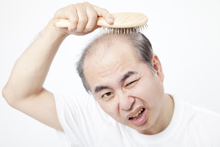 thinning: Middle-aged men to be concerned about thinning hair
