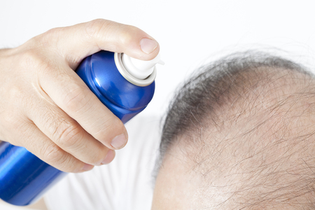 tonic: Male baldness that use the hair tonic