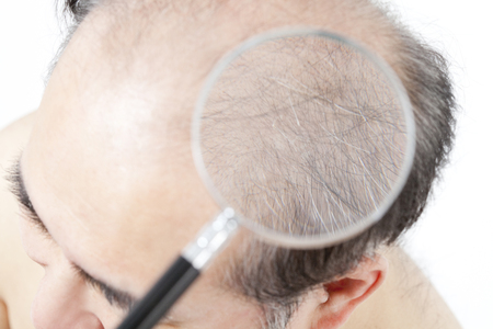 check ups: Thinning hair it is enlarged by a magnifying glass