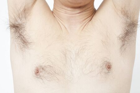 chest hair: Unwanted hair of middle-aged men