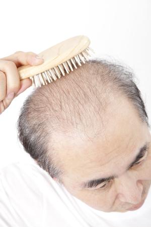 髪の損失男性を磨く 写真素材