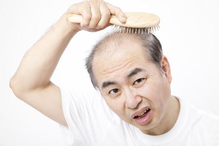 and brushing the hair loss men Stockfoto