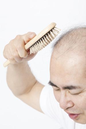 scalp: Tap the scalp with the brush thinning hair men Stock Photo