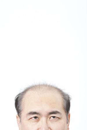 thinning: Head of thinning hair men Stock Photo