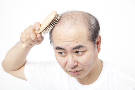 age forty: and brushing the hair loss men Stock Photo