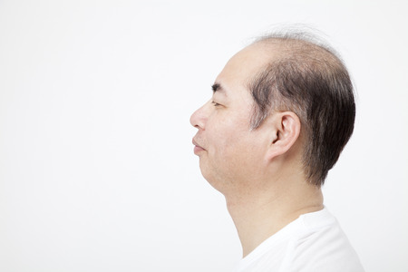 thinning: Thinning hair male profile Stock Photo