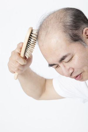 Tap the scalp with the brush thinning hair men Stock Photo